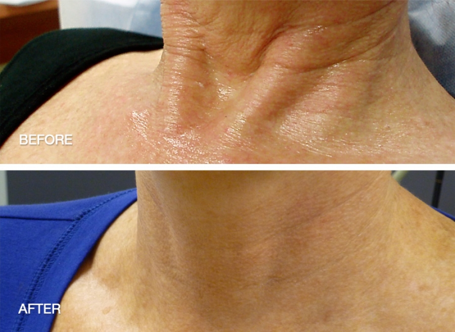 Neck D 233 Colletage And Hand Rejuvenation Dr May Marr