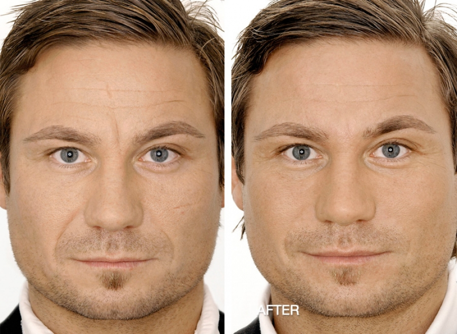 Male Facial Rejuvenation Dr May Marr