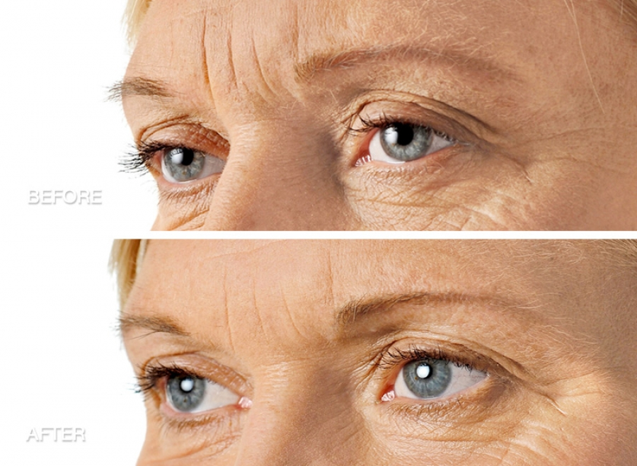 concern: Facial lines and wrinkles