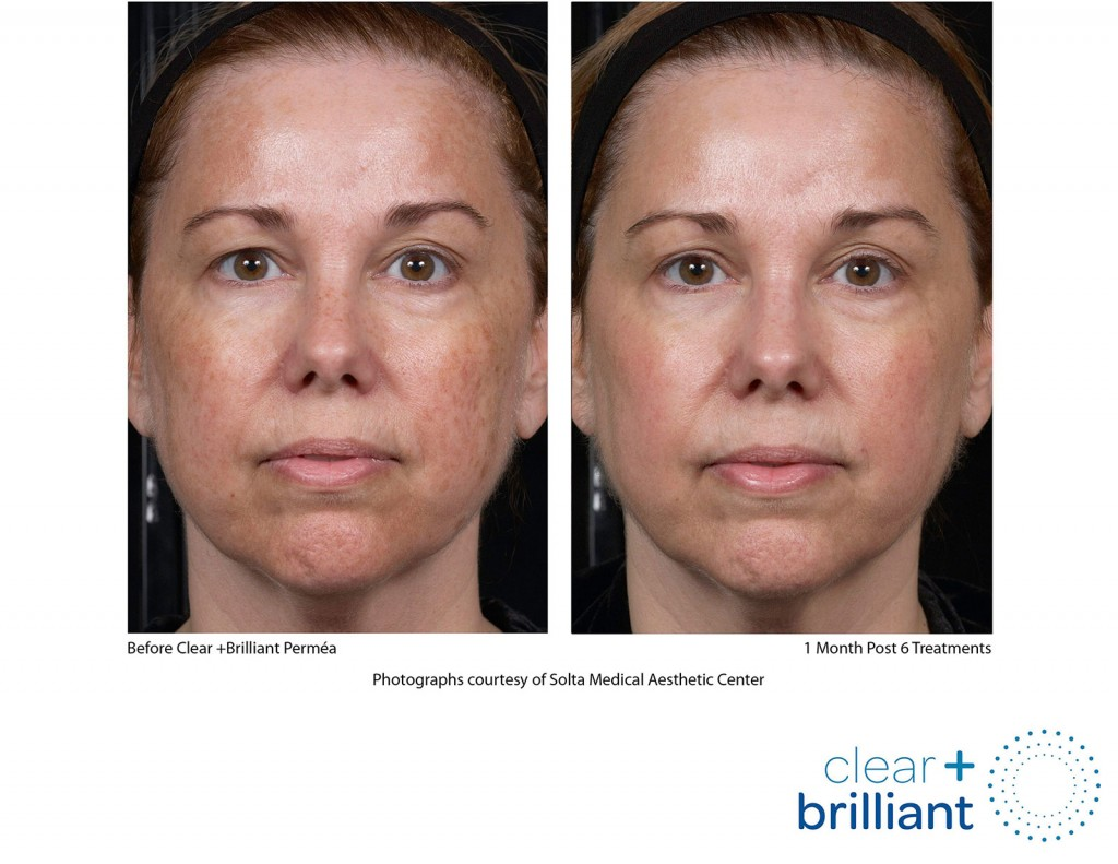 concern: <span>Facial redness, broken capillaries, rosacea</span>