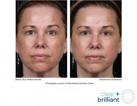 concern: Facial redness, broken capillaries, rosacea