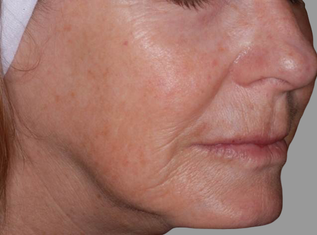 Dr May talks about non surgical skin tightening and lifting with the new Exilis machine