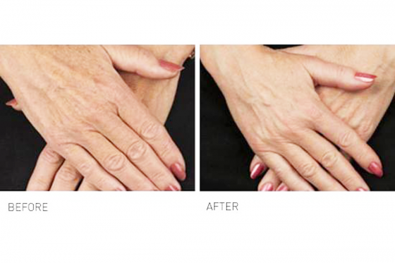 concern: Hand rejuvenation